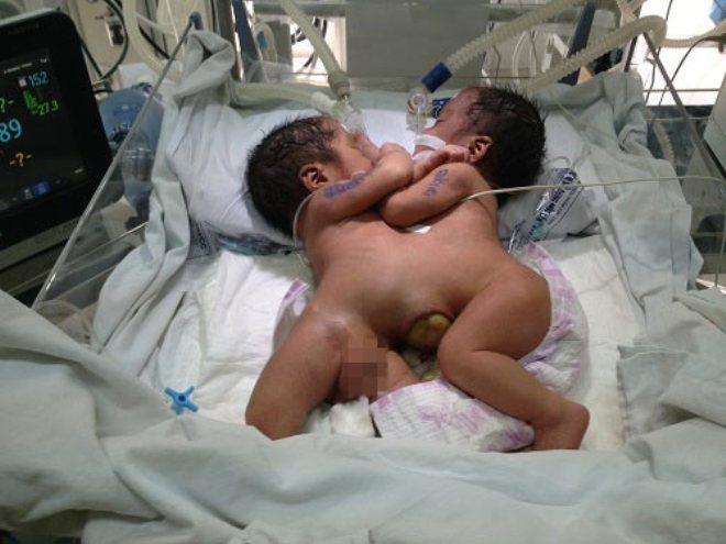 PGĐ bệnh viện mang biển ra chợ xin từ thiện cứu 2 bé song sinh - Ảnh 1.