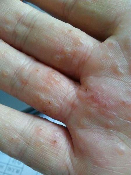 Bài thuốc đặc trị dành cho người chết khổ vì bệnh ghẻ, mụn nước - Ảnh 1.