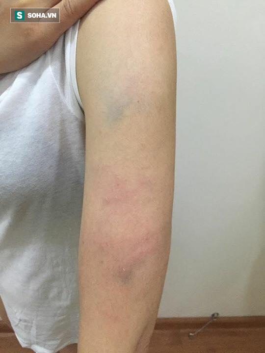 Hà Nội: Thấy người khác nhổ nước bọt ở thang máy, người phụ nữ nhắc thì bị đánh tới tấp - Ảnh 1.