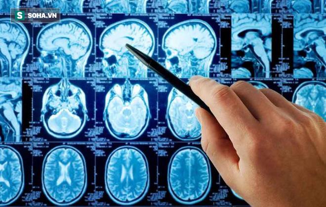 7 dấu hiệu bất thường cảnh báo bạn có thể đang có 1 khối u trong não - Ảnh 3.