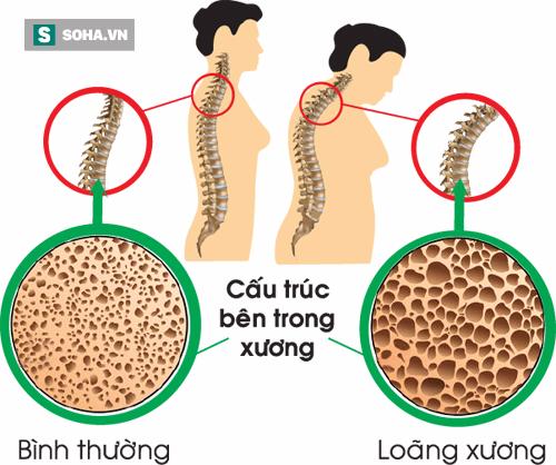 4 dấu hiệu âm thầm cảnh báo loãng xương, căn bệnh rất nhiều người mắc mà không biết - Ảnh 1.