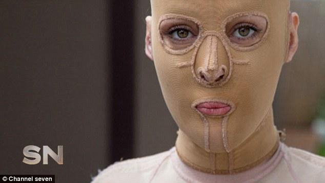 Bất ngờ với khuôn mặt cô gái tháo bỏ mặt nạ sau hơn 2 năm giấu mình vì bị đánh ghen - Ảnh 1.