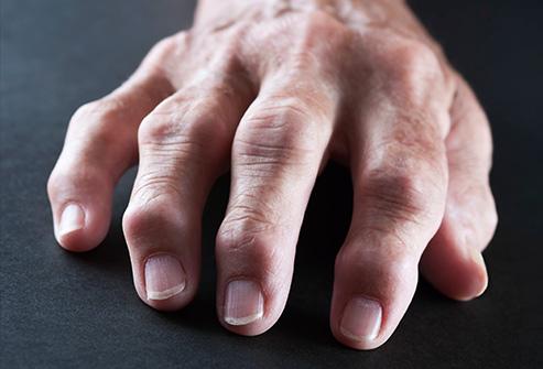9 bộ phận cơ thể bị hủy hoại bởi thuốc lá - Ảnh 1.