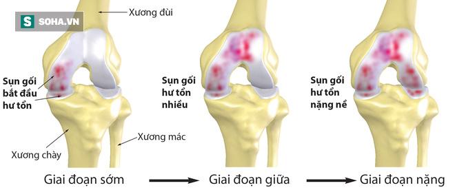 Bài thuốc chữa đau đầu gối, đau lưng giúp bệnh nhân tái sinh - Ảnh 1.