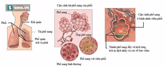 Cảnh báo trẻ viêm phổi vì thói quen của nhiều mẹ Việt - Ảnh 2.