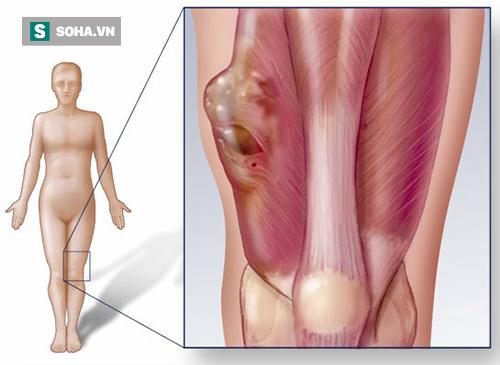 Những triệu chứng cảnh báo bệnh ung thư xương cần đi khám ngay - Ảnh 2.