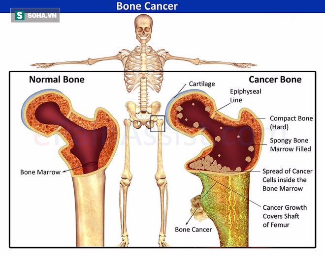 Những triệu chứng cảnh báo bệnh ung thư xương cần đi khám ngay - Ảnh 1.
