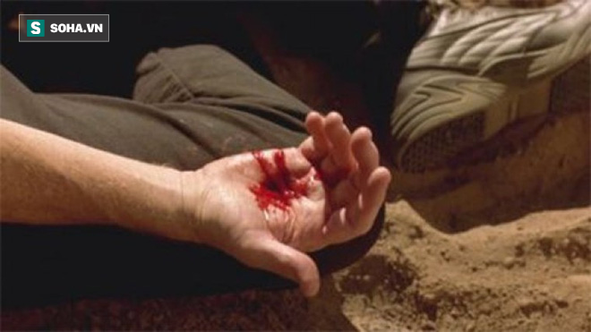 Cẩn thận với bệnh chảy máu dạ dày gây tử vong do uống rượu - Ảnh 2.