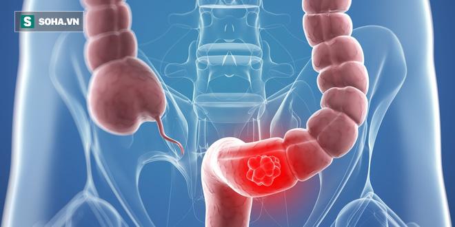7 dấu hiệu sớm của bệnh ung thư trực tràng - Ảnh 2.