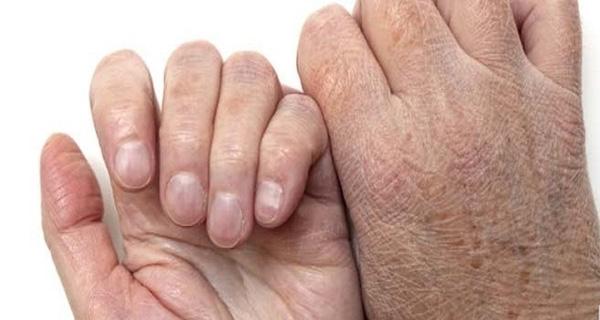 Đưa bàn tay lên ngay để xem bạn có những dấu hiệu của ung thư này không nhé! - Ảnh 1.