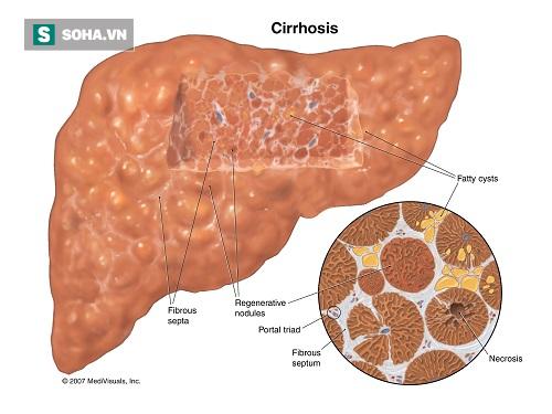 Chuyên gia cảnh báo những lá gan vàng óng: Cận kề ung thư mà không biết - Ảnh 1.