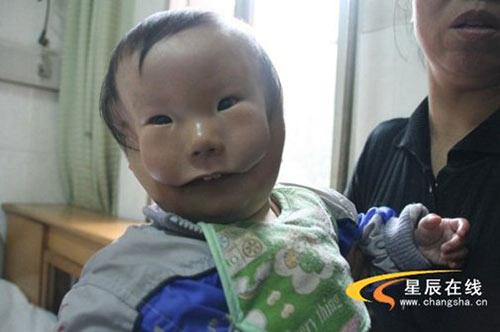 """Siêu âm thai bình thường, mẹ chết lặng khi sinh con """"2 mặt"""" - Ảnh 1."""