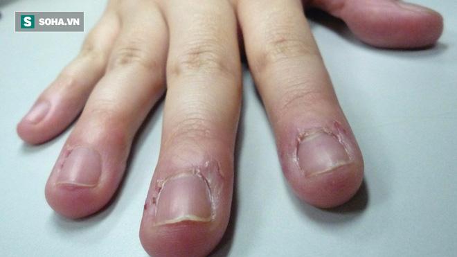 Bé 7 tuổi suýt bị cắt bỏ ngón tay vì thói quen cắn: Bố mẹ nên cai nghiện cho con  - Ảnh 3.