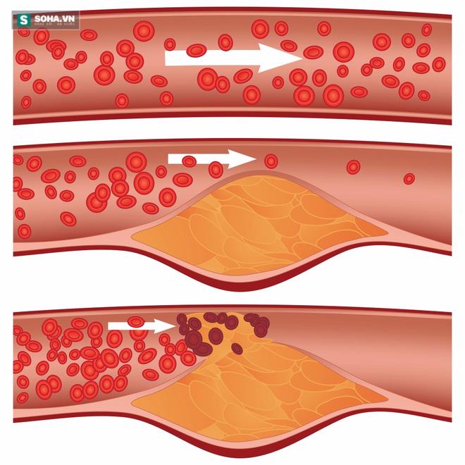 Bài thuốc kỳ diệu hết tắc nghẽn mạch máu, ngừa bệnh tim mạch nên có trong mọi gia đình - Ảnh 1.