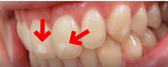 Răng bạn có những đốm trắng này không - hãy cẩn thận nếu thấy chúng - Ảnh 1.