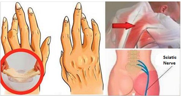 Tích trữ loại dầu này ở nhà, bạn sẽ không phải lo bị bệnh viêm khớp, đau lưng và đau dây thần kinh tọa làm phiền - Ảnh 1.