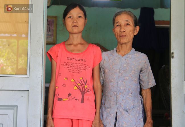 Cô gái mang khuôn mặt bà lão ở Quảng Nam: ăn gấp 10 lần người thường, uống mỗi ngày 36 lít nước - Ảnh 2.