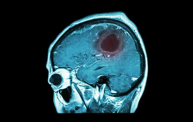 7 dấu hiệu cảnh báo khối u não bạn đừng coi thường - Ảnh 1.