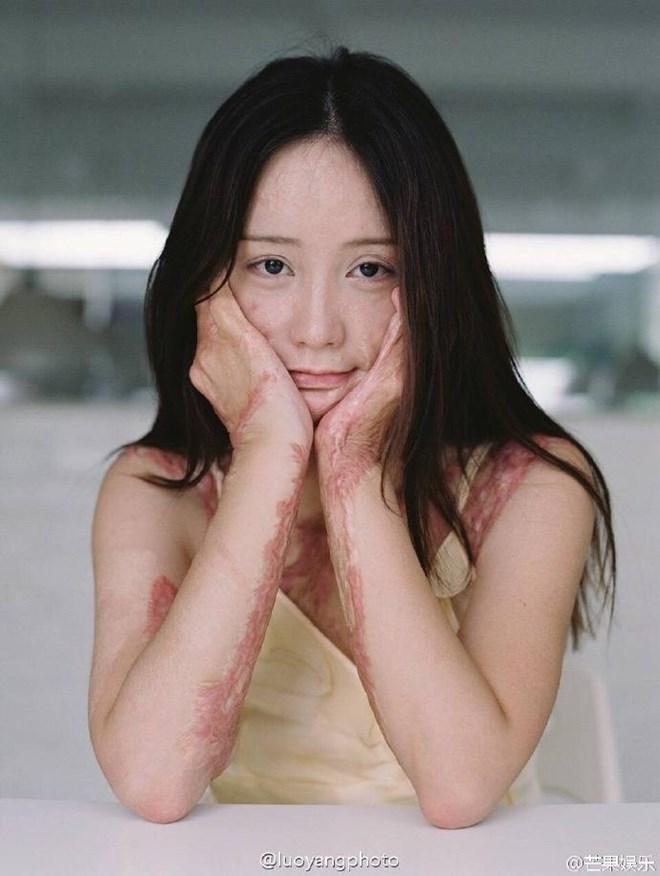 Bộ ảnh của cô gái bị bạn học tẩm xăng đốt gây sốt ở Trung Quốc - Ảnh 1.