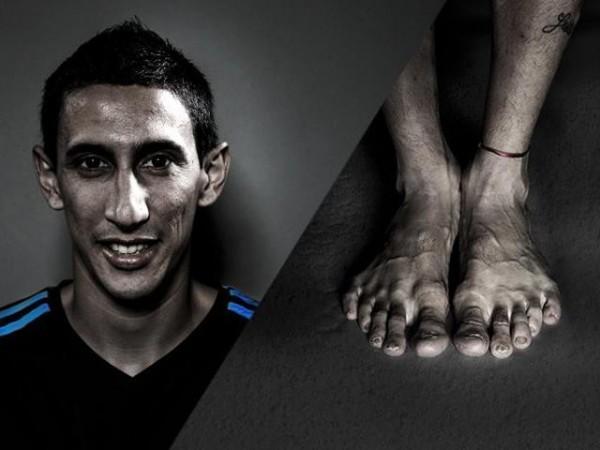 Vì vinh quang, những Ronaldo, Villa... đã trả giá bằng đôi chân biến dạng dị như thế này đây - Ảnh 2.