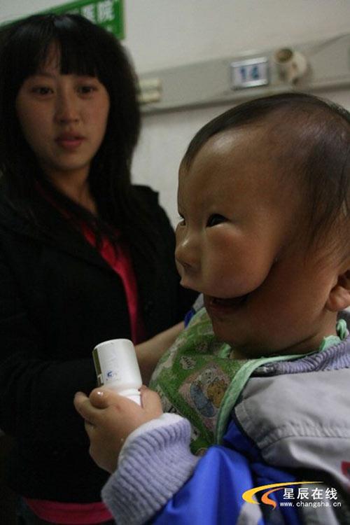 """Siêu âm thai bình thường, mẹ chết lặng khi sinh con """"2 mặt"""" - Ảnh 3."""