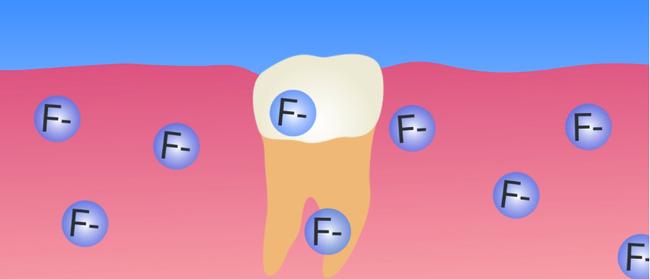 Răng bạn có những đốm trắng này không - hãy cẩn thận nếu thấy chúng - Ảnh 3.