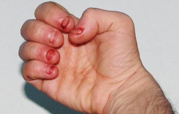 Bạn sẽ không ngờ thói quen cắn móng tay tưởng vô hại đã giết chết một người như thế này - Ảnh 3.