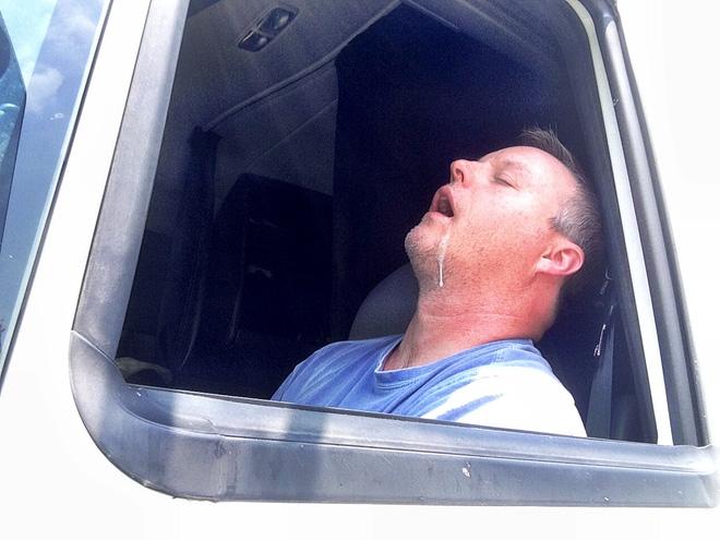 90% người không biết căn bệnh đằng sau việc chảy nước miếng khi ngủ - Ảnh 3.