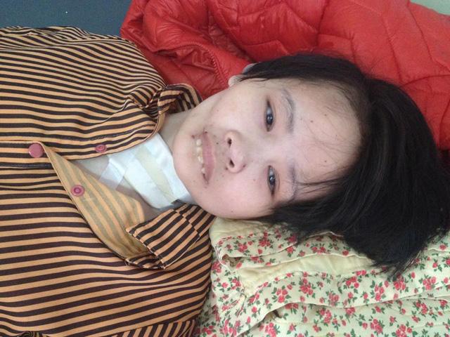 Cô gái bà lão lở loét toàn thân, răng rụng vì bệnh lạ - Ảnh 2.