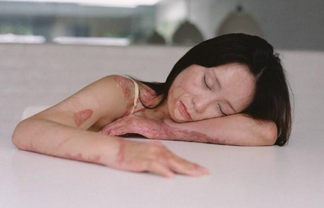 Bộ ảnh của cô gái bị bạn học tẩm xăng đốt gây sốt ở Trung Quốc - Ảnh 2.