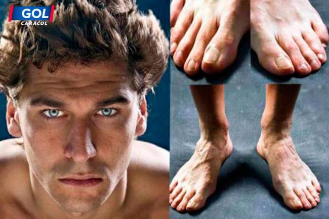 Vì vinh quang, những Ronaldo, Villa... đã trả giá bằng đôi chân biến dạng dị như thế này đây - Ảnh 3.