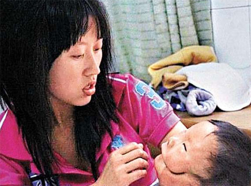 """Siêu âm thai bình thường, mẹ chết lặng khi sinh con """"2 mặt"""" - Ảnh 4."""