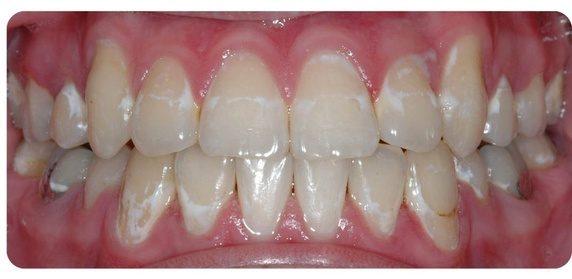 Răng bạn có những đốm trắng này không - hãy cẩn thận nếu thấy chúng - Ảnh 4.