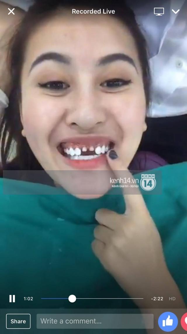 Tự livestream cảnh làm răng, Hà Lade khiến dân tình choáng nặng vì hai răng cửa mài bé tí - Ảnh 3.