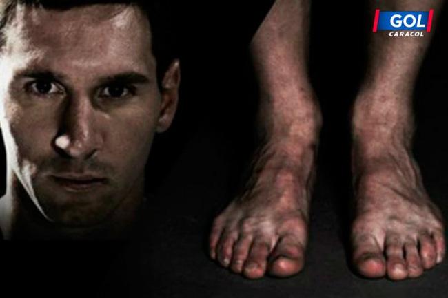 Vì vinh quang, những Ronaldo, Villa... đã trả giá bằng đôi chân biến dạng dị như thế này đây - Ảnh 4.
