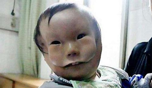 """Siêu âm thai bình thường, mẹ chết lặng khi sinh con """"2 mặt"""" - Ảnh 5."""