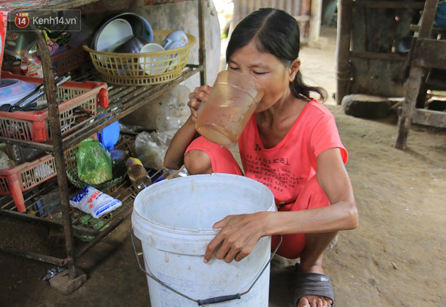 Cô gái mang khuôn mặt bà lão ở Quảng Nam: ăn gấp 10 lần người thường, uống mỗi ngày 36 lít nước - Ảnh 5.