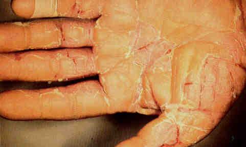 Dù nặng hay nhẹ, cứ nhiễm độc chì là trẻ phải chịu hậu quả suốt đời - Ảnh 4.