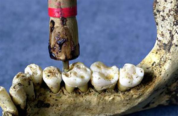 Răng tự phát nổ trong miệng? Câu chuyện có thật ở thế kỷ 19 - Ảnh 5.