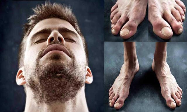 Vì vinh quang, những Ronaldo, Villa... đã trả giá bằng đôi chân biến dạng dị như thế này đây - Ảnh 5.