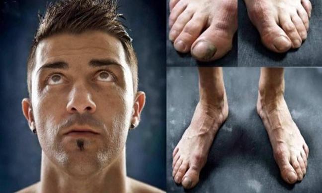 Vì vinh quang, những Ronaldo, Villa... đã trả giá bằng đôi chân biến dạng dị như thế này đây - Ảnh 6.