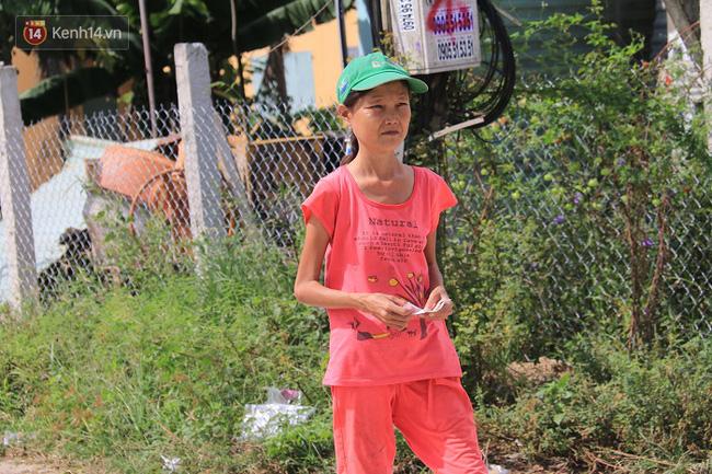 Cô gái mang khuôn mặt bà lão ở Quảng Nam: ăn gấp 10 lần người thường, uống mỗi ngày 36 lít nước - Ảnh 8.