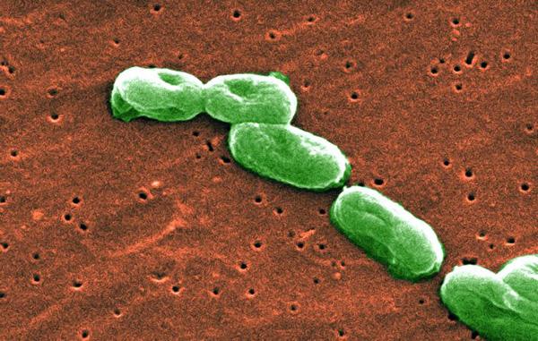 10 vi khuẩn cần phải đề phòng khi thời đại kháng kháng sinh đã đến - Ảnh 8.