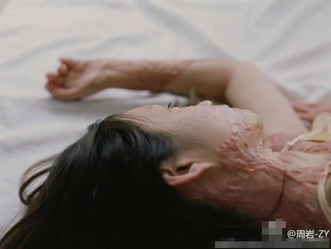 Bộ ảnh của cô gái bị bạn học tẩm xăng đốt gây sốt ở Trung Quốc - Ảnh 7.