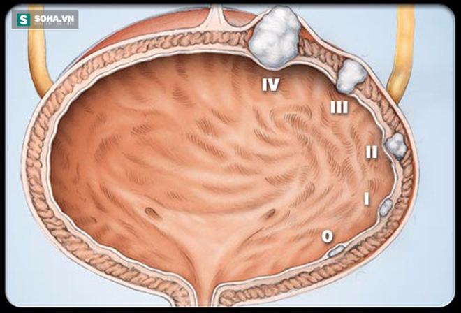 Đi tiểu ra máu – dấu hiệu ung thư sớm bạn không nên bỏ qua - Ảnh 1.