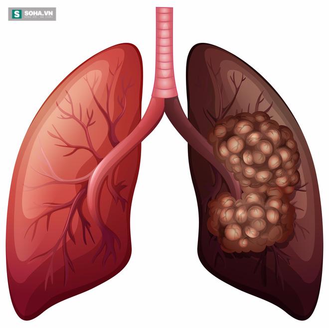 Những dấu hiệu cảnh báo sớm bệnh ung thư phổi bạn cần nắm rõ - Ảnh 1.