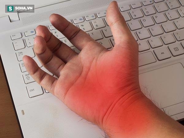 Cảnh báo bệnh nguy hiểm khi thường xuyên bị tê và ngứa ran ở tay - Ảnh 1.