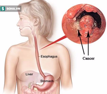 4 thói quen ăn uống là mầm họa ung thư thực quản - Ảnh 1.