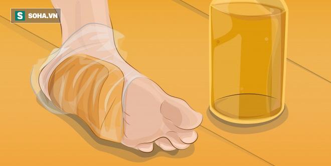 7 cách tự nhiên để giữ cho đôi chân của bạn luôn chắc khỏe - Ảnh 1.