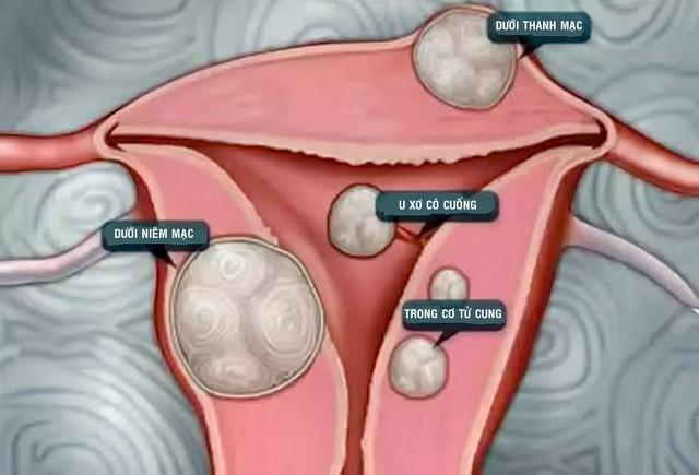 Phụ nữ Việt coi chừng phải cắt tử cung, vô sinh vì u xơ - Ảnh 2.